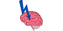 Picture of a brain with an arrow representing the stroke section.